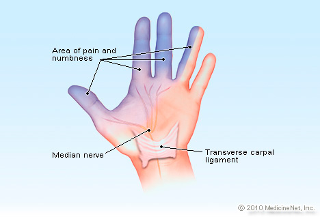 Carpal Tunnel Syndrome And Chiropractic Care Richmond